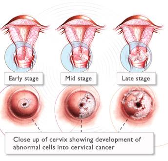 cervical cancer stages - What is Cervical Cancer?